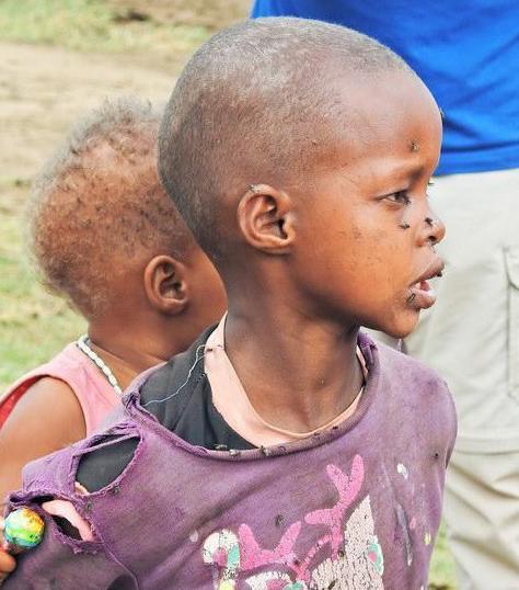 """非洲小男孩每一个人都要接受""""切肤之痛"""""""