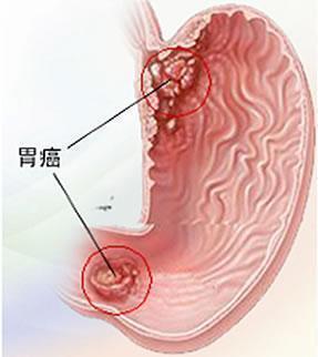 男大学生长期在火锅店打工,一年后胃癌晚期!医生说一个习惯害的-中国记录