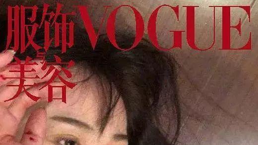 王宝强也陷家暴风波, 马蓉摆拍受伤照还称结婚后多次被打