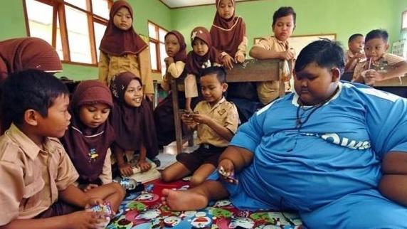 世界上最胖的男孩手术后减重170斤,但皮肤松弛急盼切除!