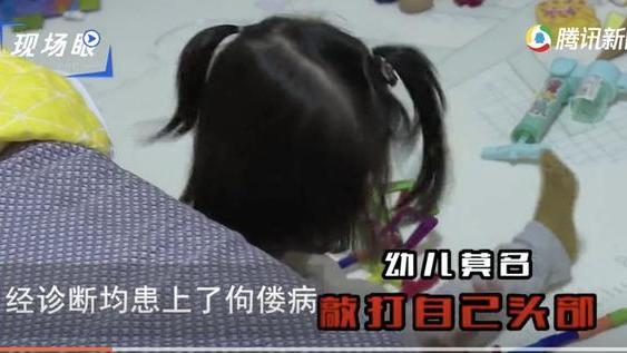 """郴州多名幼儿因这""""奶粉""""成大头娃娃,医生所说的话惊呆了家长们"""