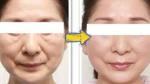 梦禾精华套装 精华与面膜这样搭配使用,修护80%受损皮肤!