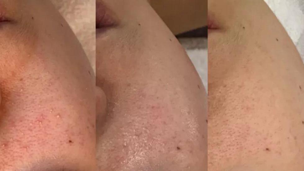 敏感性皮肤的夏季护肤要诀,6个月康复!