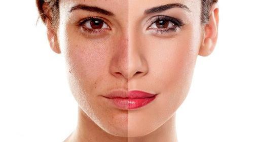 混合性皮肤推荐洁面乳 敏感混合型皮肤洗面奶推荐