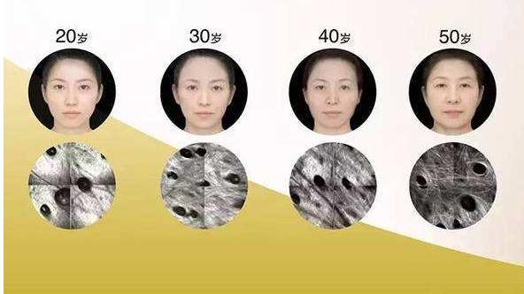春季护肤建议去皱纹法-使肌肤更健康