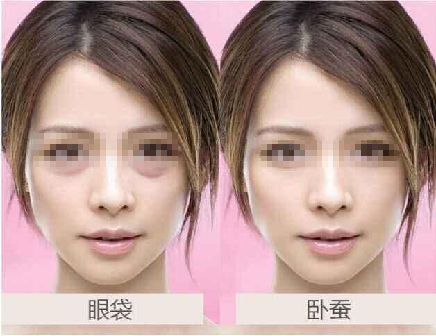去眼袋什么眼霜效果好 真正有效好用的6款去眼袋眼霜
