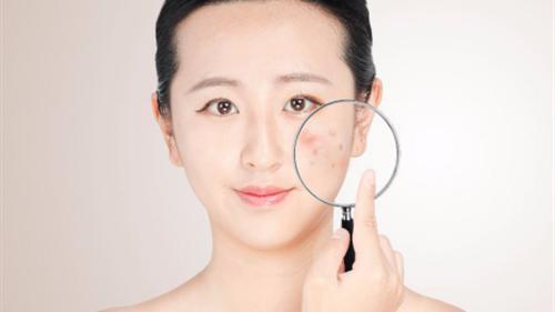 源自护肤品:痘敏肌是怎么形成的?培养好习惯,解决痘痘问题