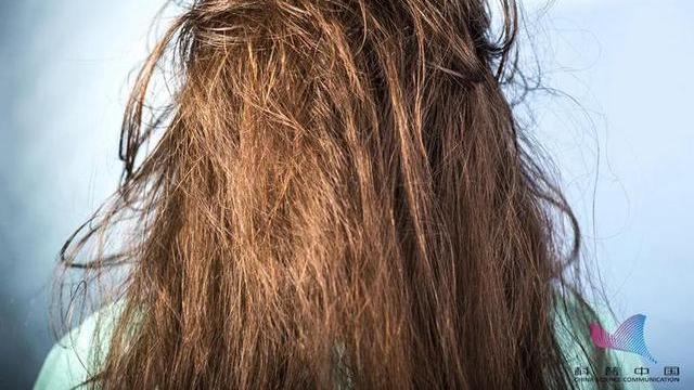 为什么天天洗头,头发却越洗越油?