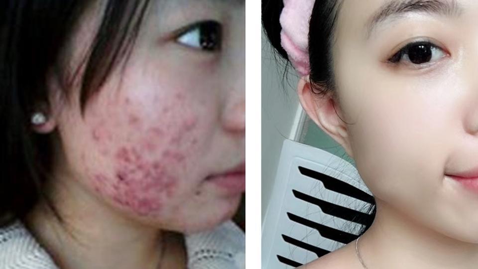 20多岁的女人,如果不想皮肤变得干燥敏感、长痘痘,该怎么护肤?