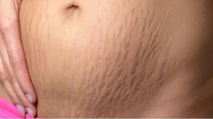 青睐皮肤,孕期,特征,弹性,腹部