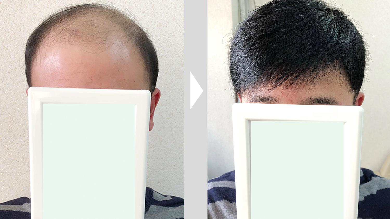 中老年假发套男士哪里买?