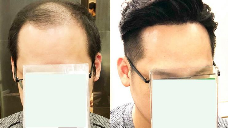 哪里有卖中老年假发男真发的?