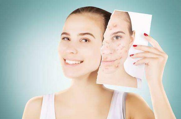 可儿护肤:修复激素脸要经历哪几个阶段?