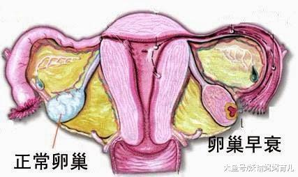 什么是卵巢早衰? 卵巢健康才能好孕上身, 卵巢养护做好这5点