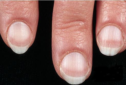 指甲3个异常一出现, 小心肝脏有大问题, 再拖医
