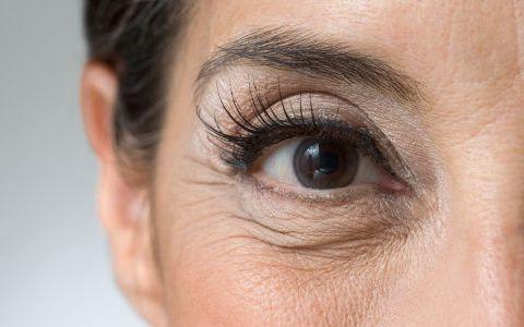 """有一种""""不起眼""""的医用乳膏,90秒瞬间拉平皱纹眼袋,堪比激光"""