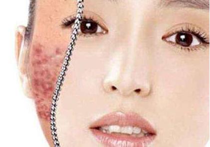 可儿护肤:痘印肌肤护理时有哪些禁忌