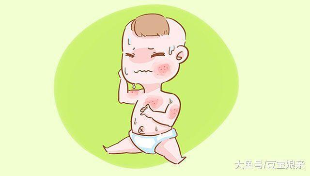 这2种宝宝最容易被湿疹找上门, 宝妈要赶快预防