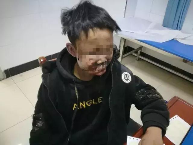 哑炮爆炸!13岁孩子脸部被炸涣然一新,让孩子玩鞭炮的家长注重了!