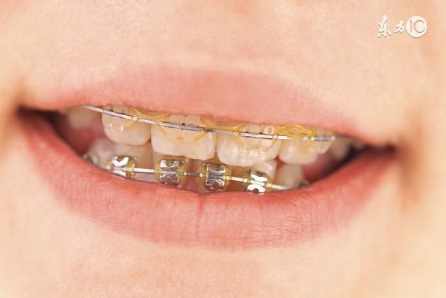 牙齿改正实的有害?为什么明星乐此不彼