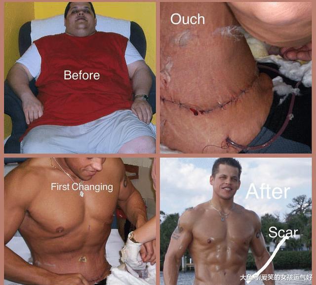 一块腹肌变六块 一年内减肥割肉变肌肉男神