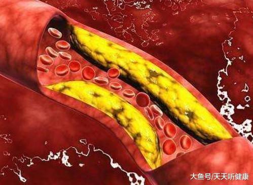 得高血压若干年后,便能够会产生心梗、脑梗、脑出血?如何预防?