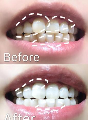 景苦张俪彭昱畅皆在用的牙膏,好白效果堪比换牙,30天不到便白了!