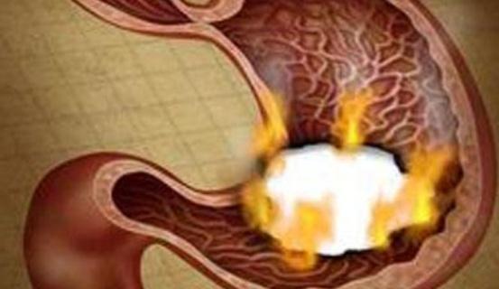 胃酸不是溃疡的间接本果, 3年夜果素是招致胃溃疡的祸首罪魁
