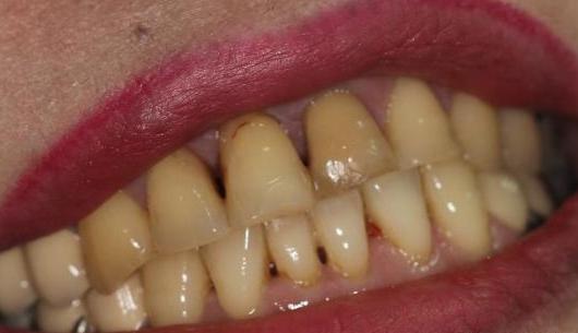 刷牙只需用一个小方法,10年黄牙口臭全都去光光,大多数人不知道