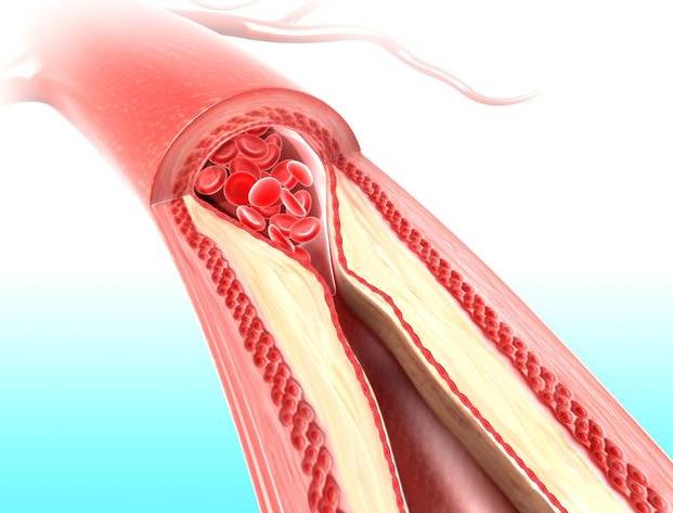 血脂跨越若干才算高血脂呢?血脂高了,身体味泛起哪些症状?