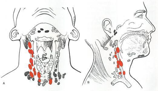 甲状腺结节有钙化是什么意义? 严峻吗?