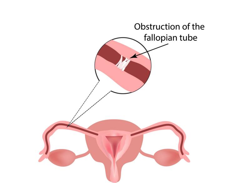 单侧输卵管梗塞最适合的体式格局是做试管婴儿!