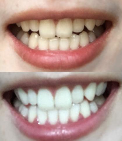 明星同款的牙膏火的要死,不愧是黄牙末结者,30天让您跟黄牙道拜拜