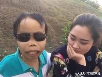陈山停播两年变化有多大?看到陈山的脸,粉丝不敢认了