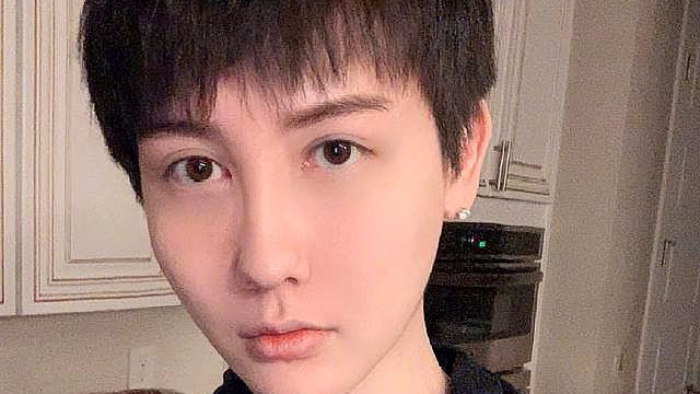 蛇精男刘梓晨自曝现状,称正在经历地狱般生活,全脸毁容无法面对