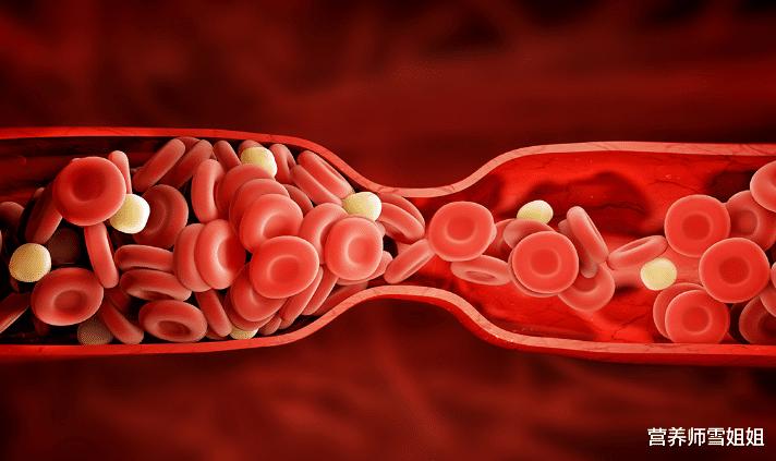 45岁后,血管加速老化,这5类食物,尽量少吃,血管承受不了