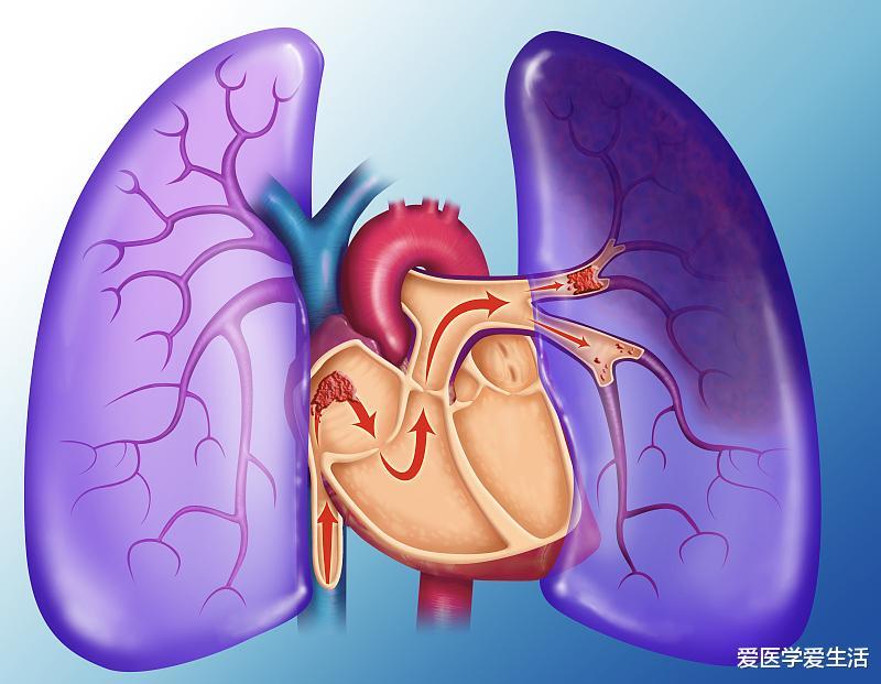 下肢疼痛不适?肺栓塞?都是深静脉血栓惹的祸,告诉你如何预防