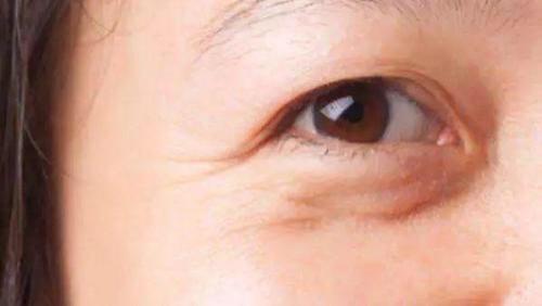 30岁了用什么产品好?抗老?眼霜产品大排名,雅诗兰黛登榜第三。