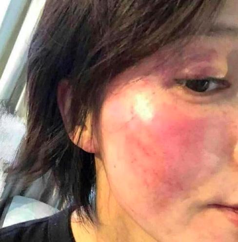 黄景瑜前妻王雨馨自杀86小时后,让我看到了人性肮脏的一面