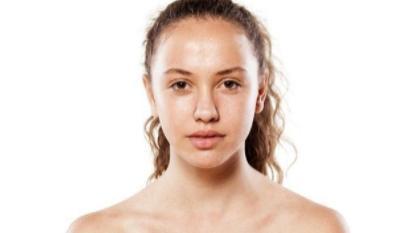 油皮敏感肌应该如何正确保湿?源自护肤小贴士