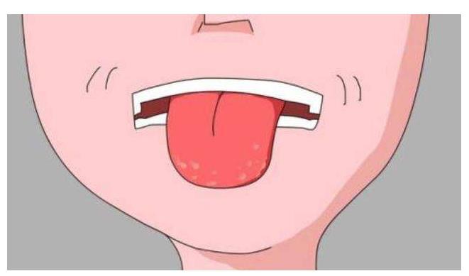 舌头下的青筋,是不是表示身体不健康?今天就给大家科普一下!