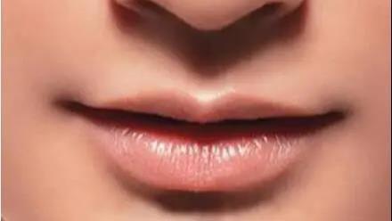 【唇部整形】万千口红不敌两瓣美唇!