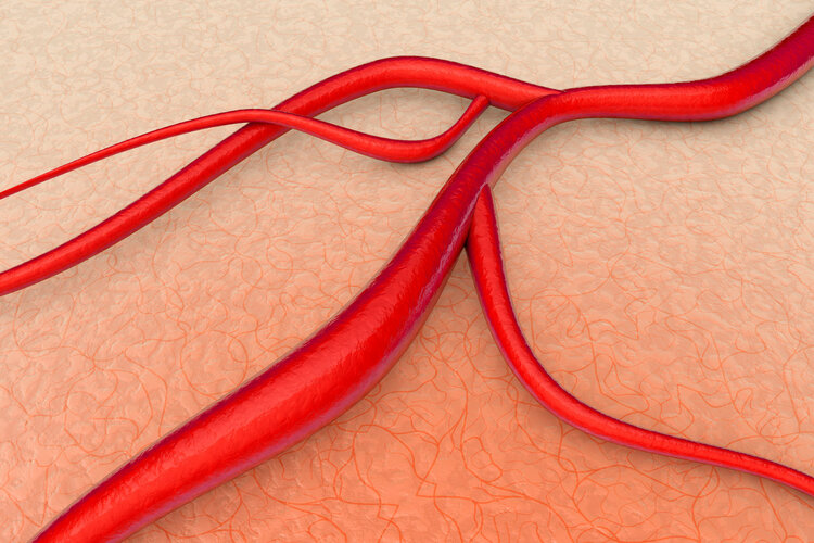 """血管梗塞怎样办?常吃3种自然食品,血管被""""洗""""得干洁净净"""