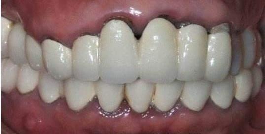 """""""美容冠""""其实牙医是拒绝的…"""