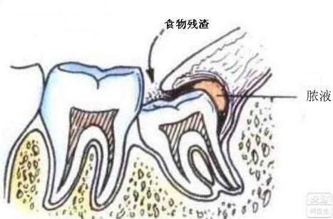 智齿发炎了怎么办?