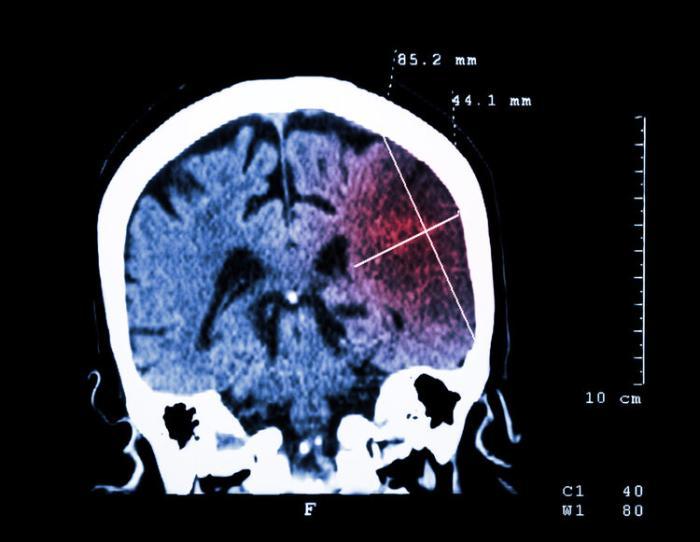 """脑科医生:50岁后不想得脑梗,要做到""""5个好""""!牢记于心"""