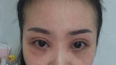 黑眼圈让你看上去老10岁!6个简单方法,消除熊猫眼