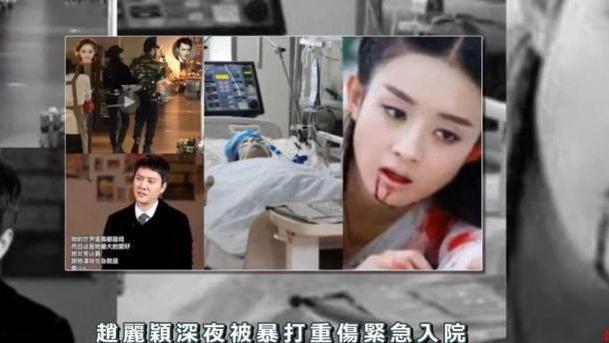 趙麗穎現身活動,現場人山人海,澄清被馮紹峰家暴住院的離婚傳聞