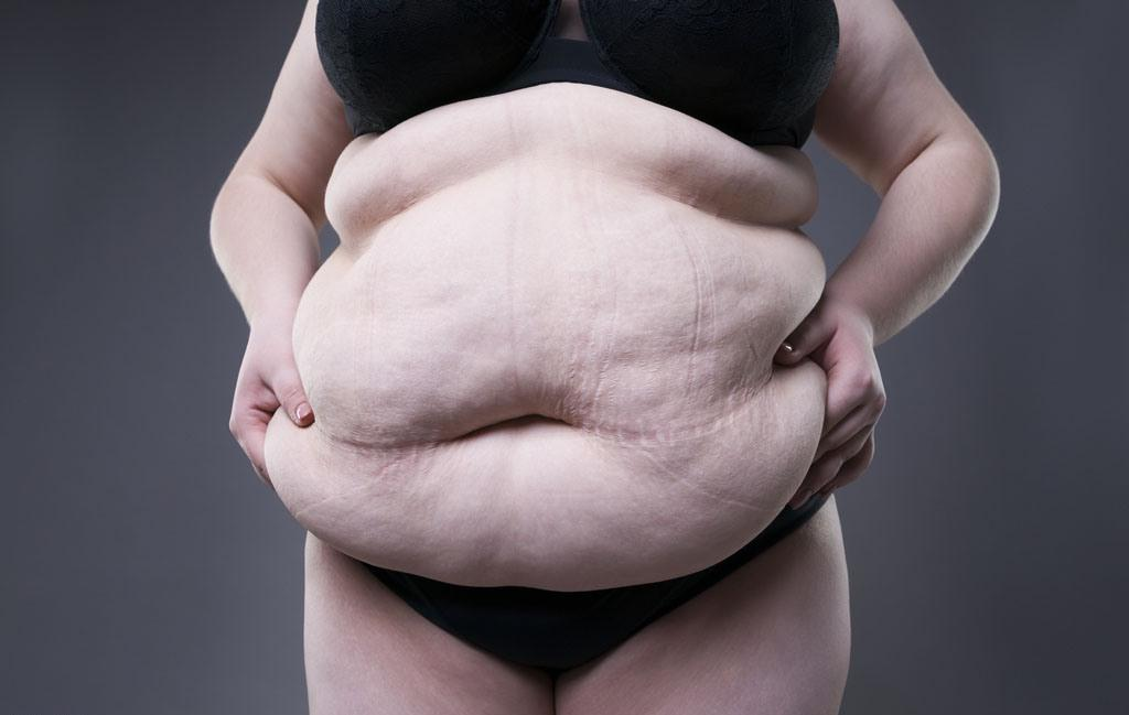 фото женщин заплывшие жиром страсти