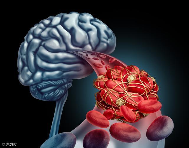 不论男女, 过了45岁, 这六种食物要少碰, 小心脑血管疾病找上门!